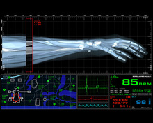 Fictional Medical Device UI for <cite>Casino Royale</cite> (2006)