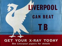 Liverpool Can Beat TB