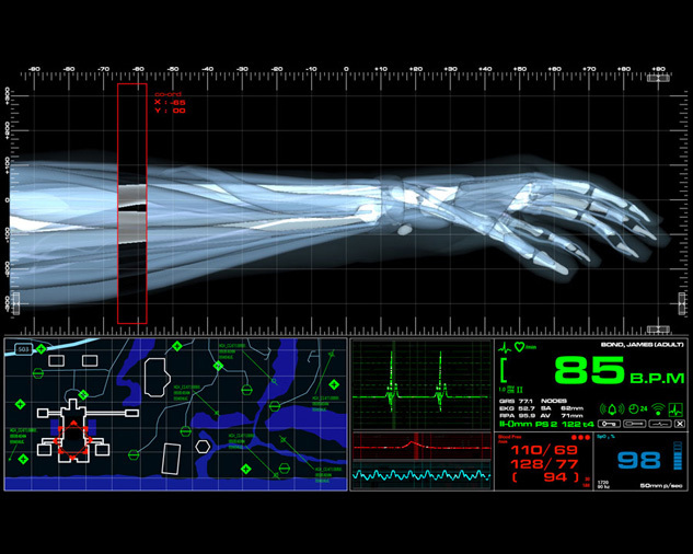 Fictional Medical Device UI for Casino Royale (2006) 1